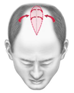 réduction de tonsure